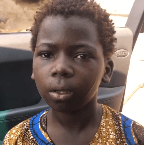 Wickedness: Mother Allegedly Scars Her Son's Face Because He Broke A Plate, Then Sends Him Out To Beg